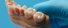 Formlabs Launches Permanent Crown Resin, Further Digitizing Restorative Dentistry
